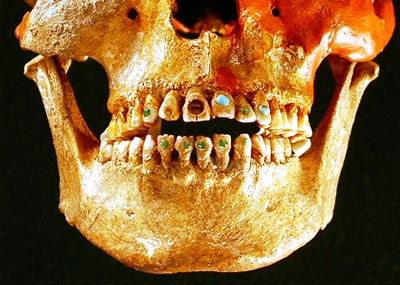 Un crâne du Chiapas (Mexique) aux dents incrustées de pierres précieuses