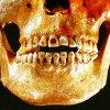 Des pierres précieuses dans des dents de Mayas