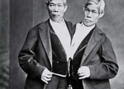 Pourquoi appelle-t-on «siamois» les jumeaux fusionnés ?
